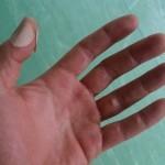 Dauerndes Klimmzugtraining hinterlässt schon mal Blasen an den Händen. Und steigert deine Kraft und erhöht die Wahrscheinlichkeit, einen Muscle Up zu schaffen.